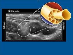 fem-nerve-anatomy, Muscles