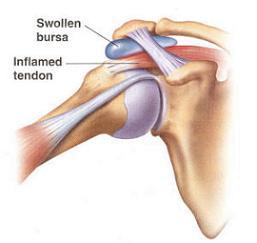Swollen Shoulder Bursa